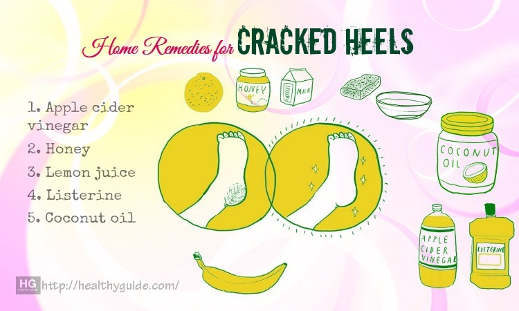 15 Best natural Home Remedies for Cracked Heels Treatment & Control