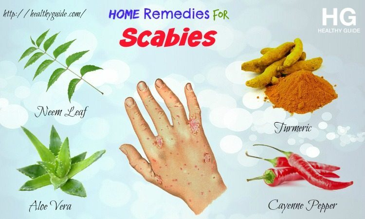 14 Home Remedies for Scabies on Skin & Scalp in Children & Adults