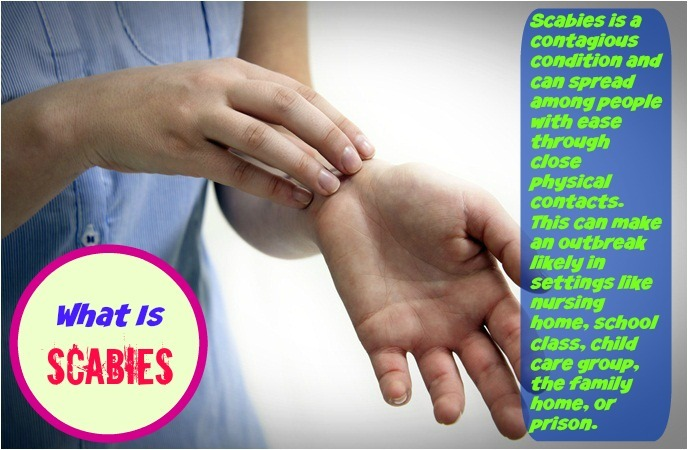 home-remedies-for-scabies-what-is-scabies