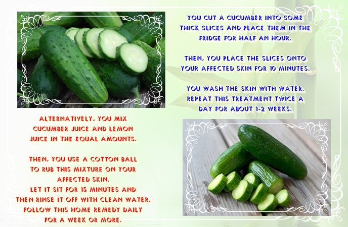 how-to-get-rid-of-a-black-eye-cucumber