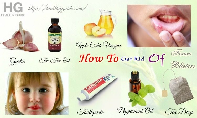 30 Tips How to Get Rid of Fever Blisters on Face, Tongue, Lip, & Mouth