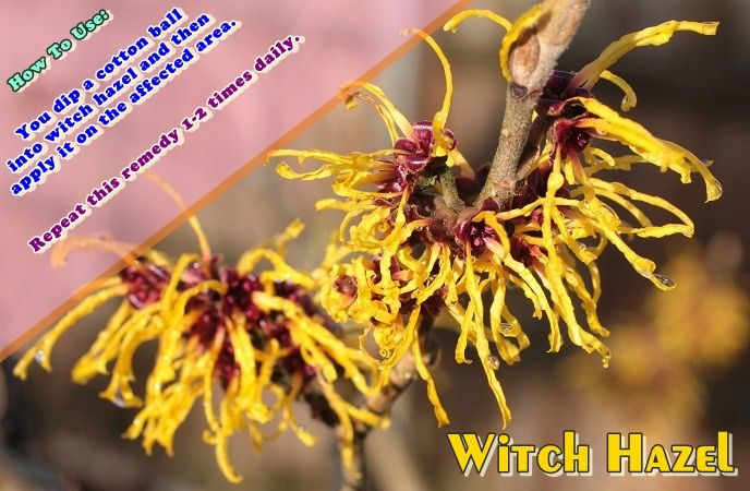 how-to-get-rid-of-fever-blisters-witch-hazel