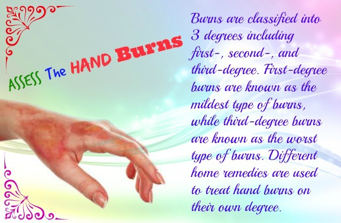 how-to-treat-burns-on-hand-assess-the-hand-burns