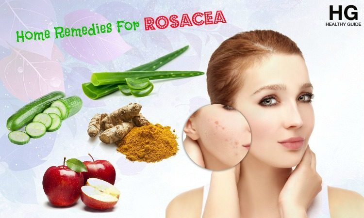 17 Home Remedies For Rosacea Rash on Facial and Body Skin