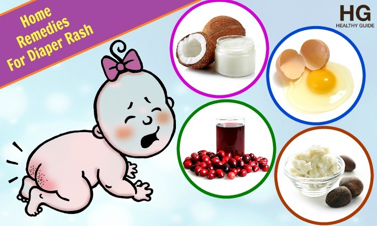 Top 24 Home Remedies For Diaper Rash Pain In Babies
