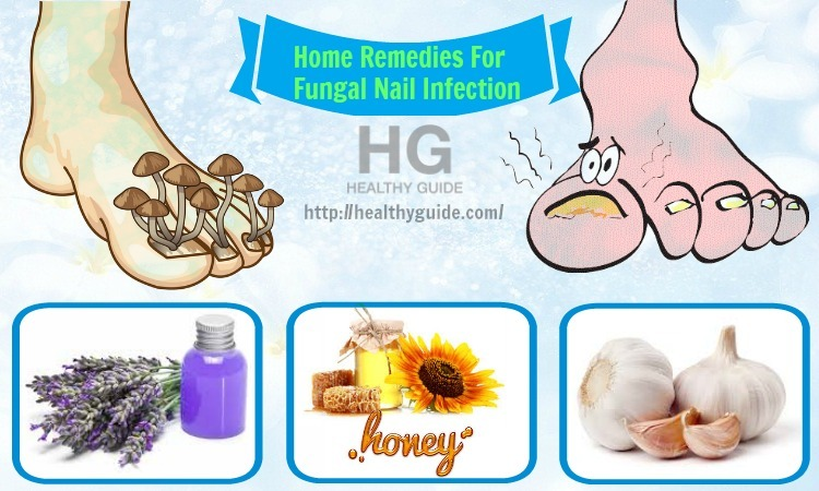 Top 21 Best Home Remedies For Fungal Nail Infection
