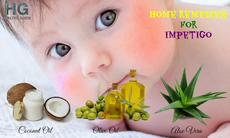 Top 21 Home Remedies For Impetigo on Face and Scalp