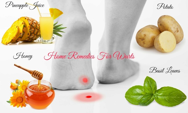 25 Home Remedies For Warts On Face, Neck, Hands And Feet
