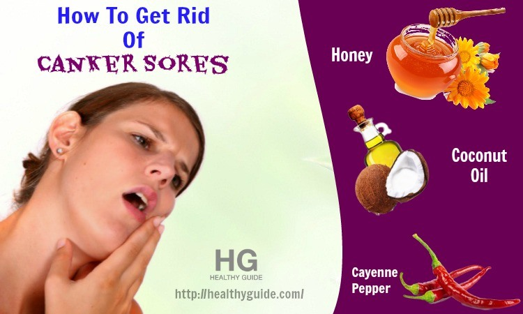 24 Tips How to Get Rid of Canker Sores inside the Mouth Fast & Naturally
