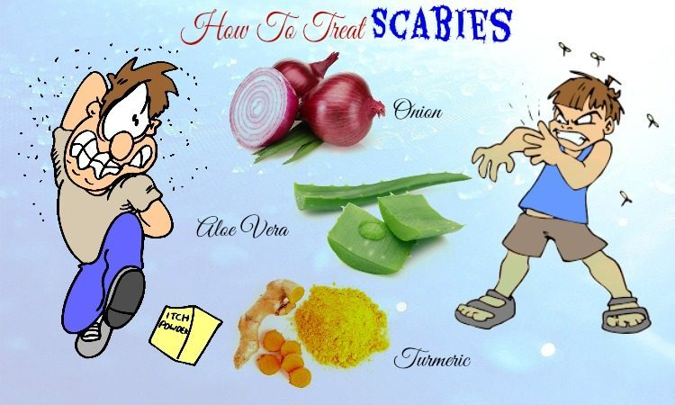 32 Tips How to Treat Scabies on Face and Scalp Naturally at Home