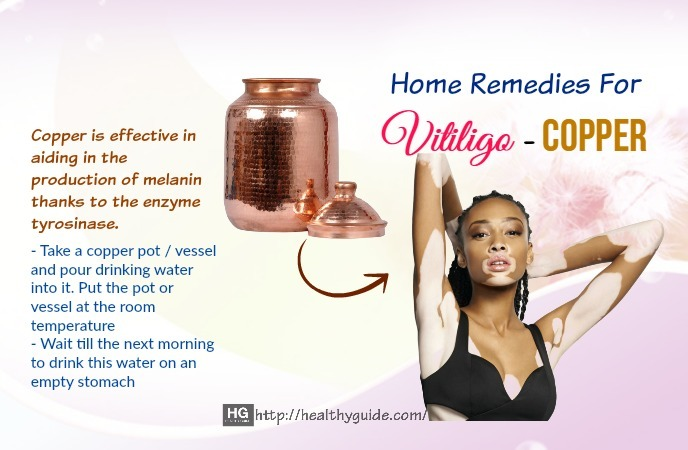 Home Remedies For Vitiligo