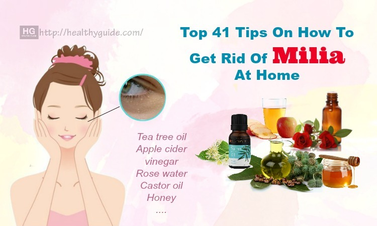 41 Tips How to Get Rid of Milia on Lips, Forehead, & around Eyes Fast