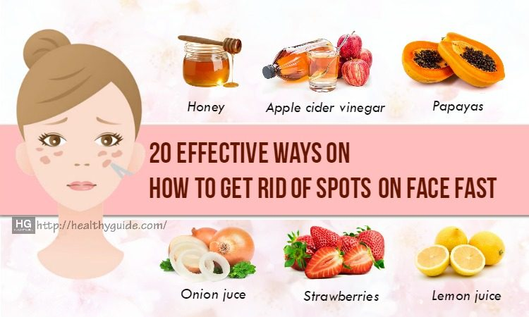 20 Tips How to Get Rid of Spots on Face, Back, Legs & Chest