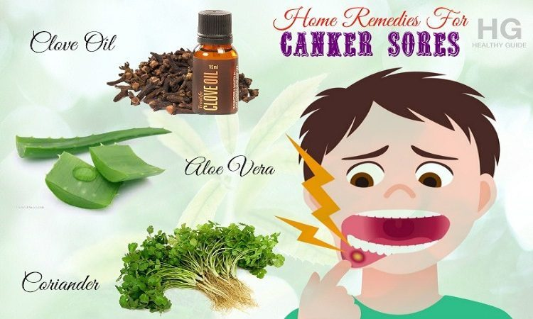 20 Home Remedies For Canker Sores On Tongue, Gums And In Throat