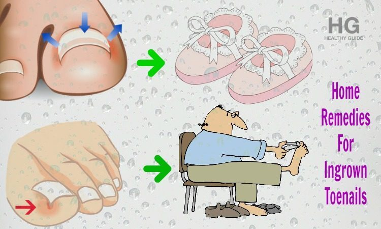 19 Natural Home Remedies For Ingrown Toenails Infection
