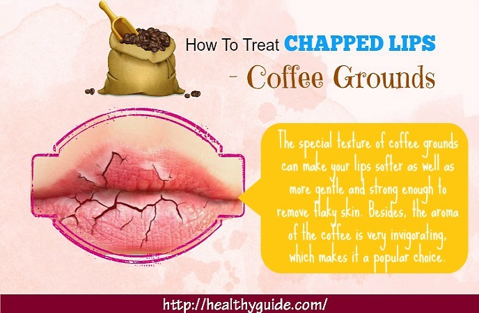 how to treat chapped lips