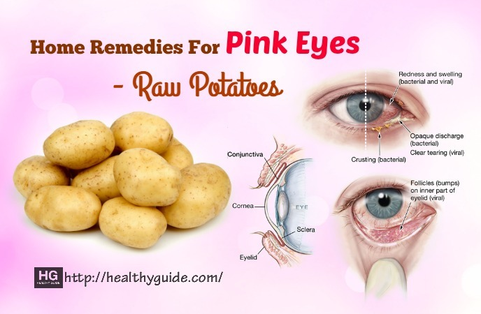 home remedies for pink eyes