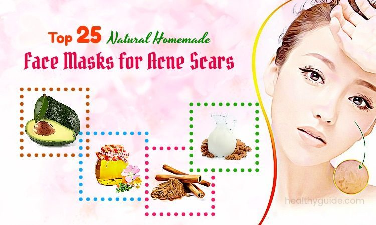 25 Natural Homemade Face Masks For Acne Scars and Redness