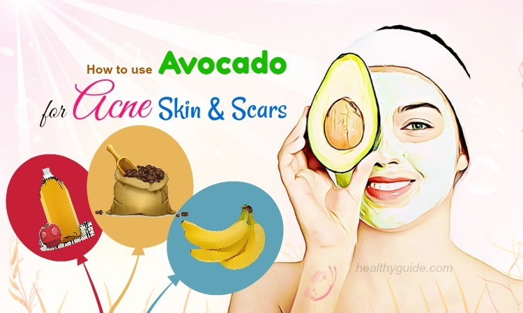 19 Tips How to Use Avocado for Acne Skin & Scars Treatment on Face