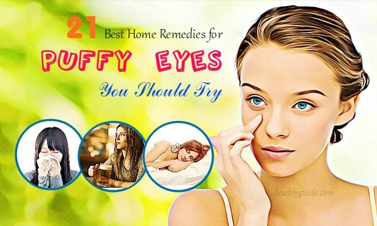 21 Home Remedies for Puffy Eyes & Eye Bags from Crying & Allergies