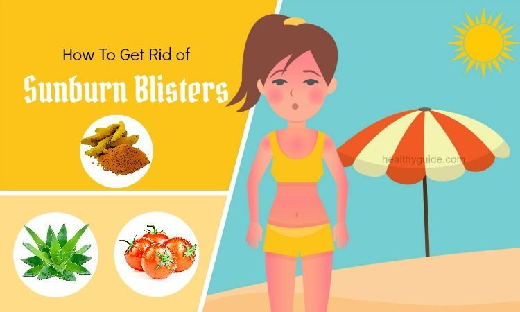 20 Tips How to Get Rid of Sunburn Blisters on Nose, Face, Lips, & Skin Fast