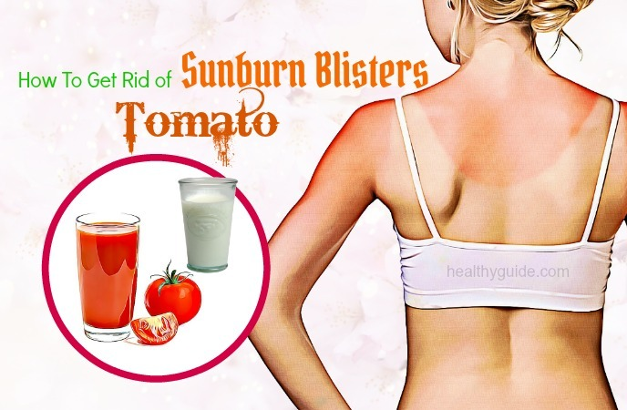 how to get rid of sunburn blisters