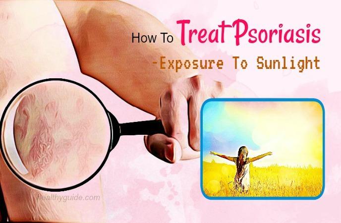 how to treat psoriasis