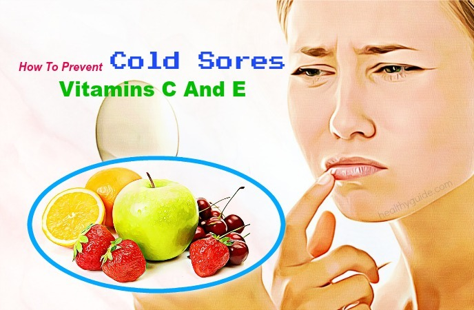 how to prevent cold sores