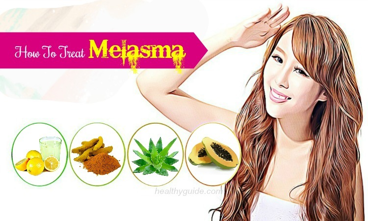 30 Tips How to Treat Melasma on Face & Upper Lips Fast & Naturally
