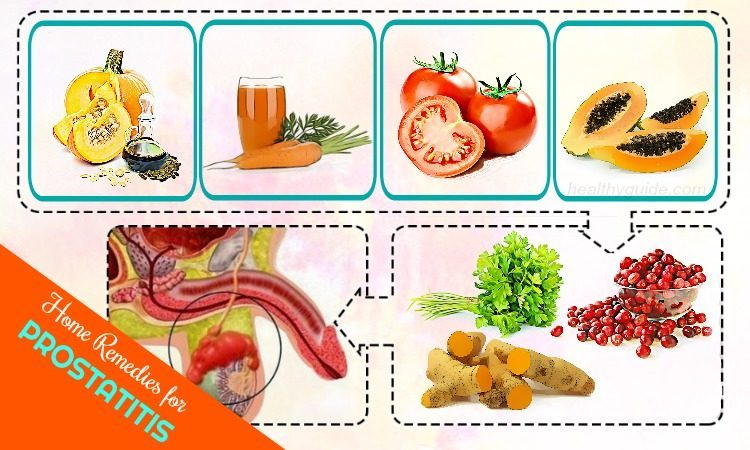 22 Natural Home Remedies for Prostatitis Pain Treatment and Control