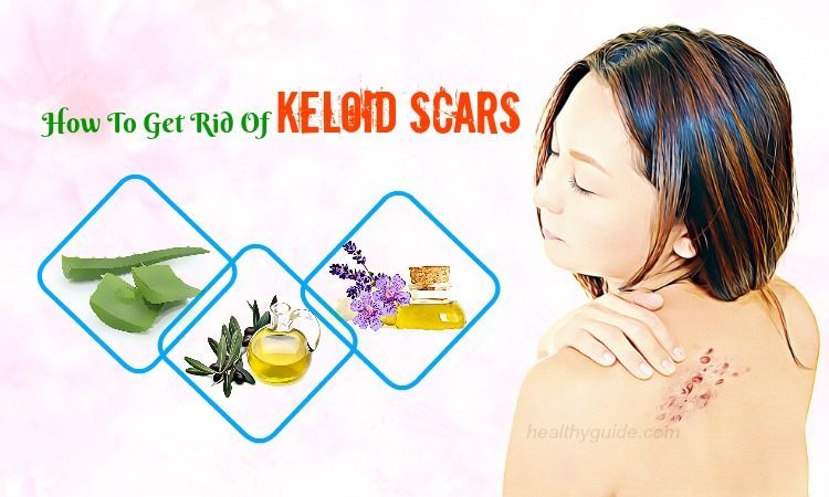 13 Tips How to Get Rid of Keloid Scars on Ear, Nose, Chest, Neck, & Back