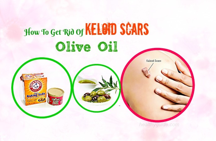 how to get rid of keloid scars