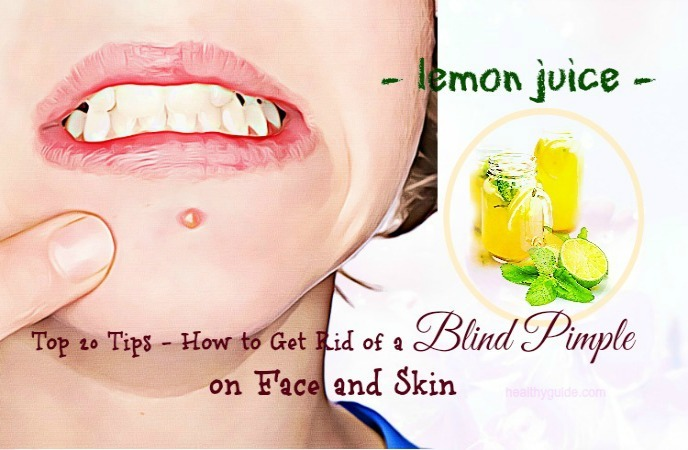 how to get rid of a blind pimple