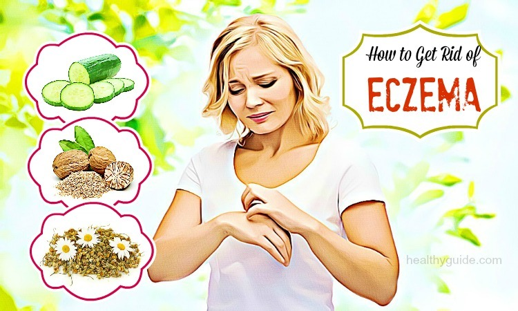 24 Tips How to Get Rid of Eczema Rash & Scars on Legs, Arms, Hands & Feet