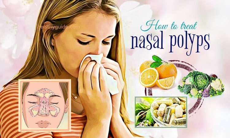 31 Tips How to Treat Nasal Polyps in Children & Adults without Surgery
