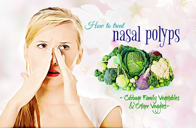 how to treat nasal polyps