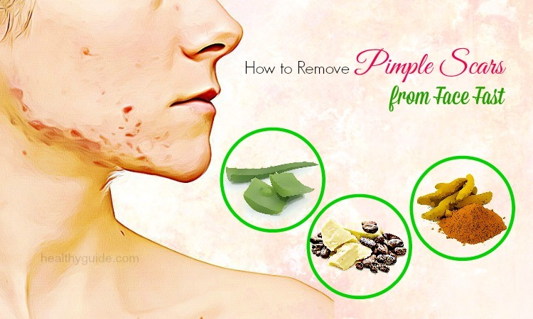 10 Tips How to Remove Pimple Scars on Nose, Chest, Back, & Legs Fast