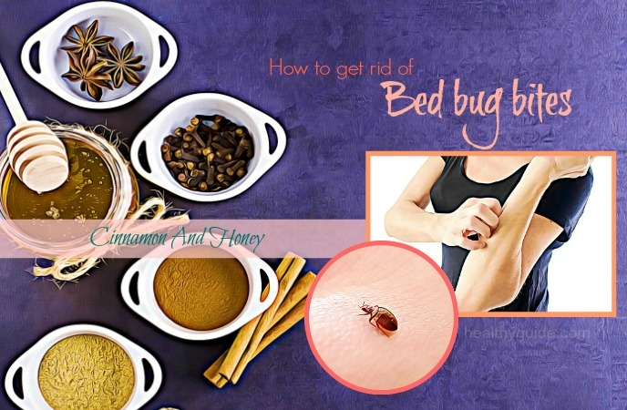 how to get rid of bed bug bites- cinnamon and hone