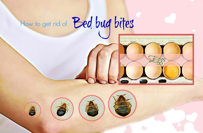 how to get rid of bed bug bite- eggs