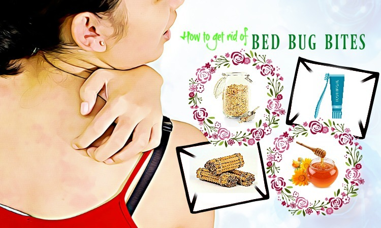 Top 37 Tips How to Get Rid of Bed Bug Bites on Skin Fast