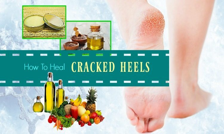 24 Remedies How to Heal Cracked Heels in Winter Overnight