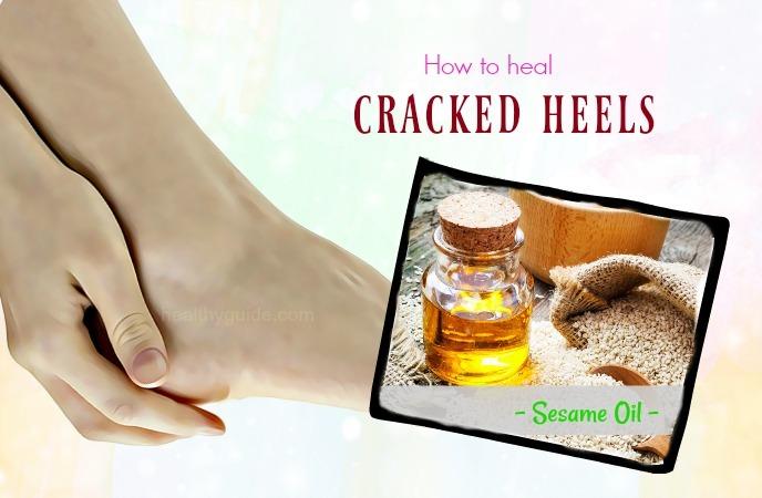 how to heal cracked heels