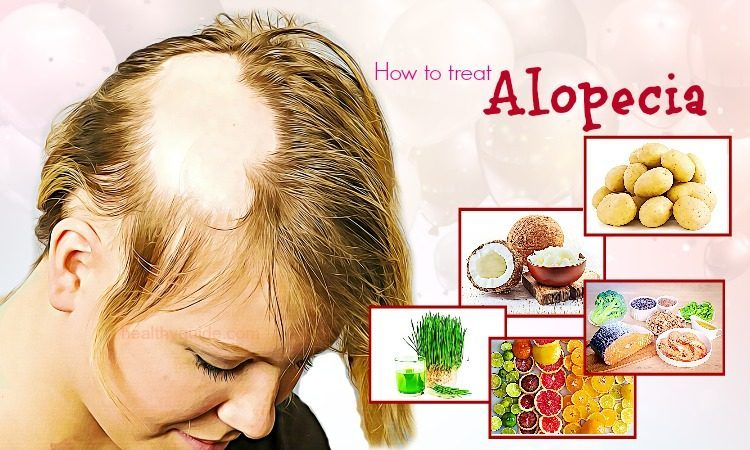 41 Tips How to Treat Alopecia Fast & Naturally in Men and Women