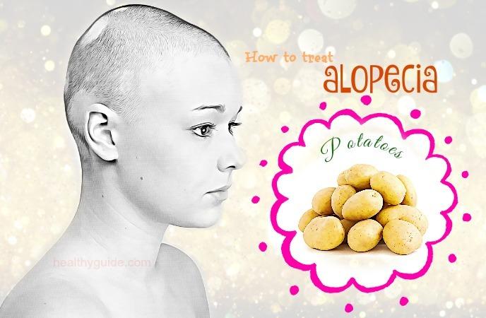 how to treat alopecia