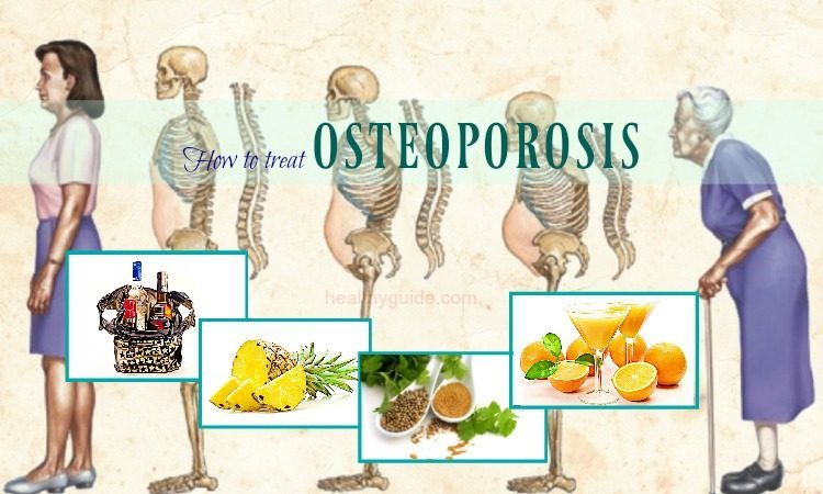 33 Tips How to Treat Osteoporosis Pain of The Hip, Knee, & Spine Naturally