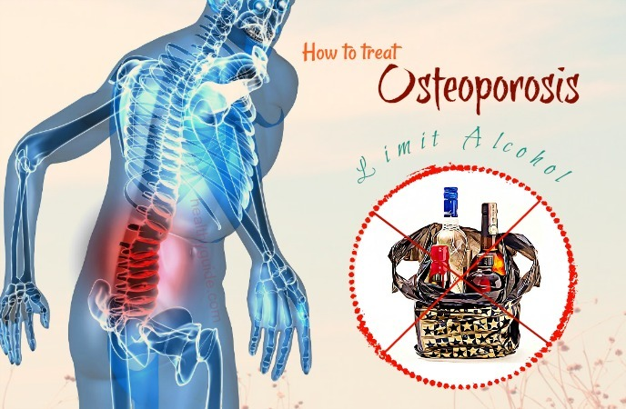 how to treat osteoporosis
