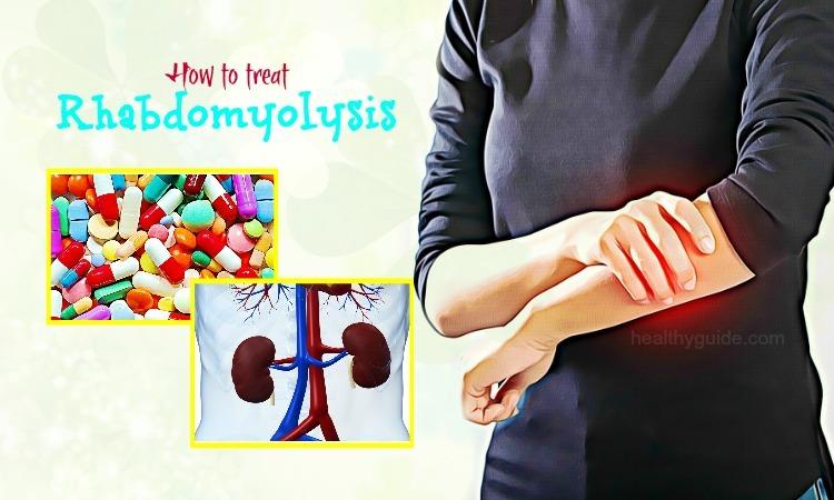 How to Treat Rhabdomyolysis Naturally at Home – 9 Tips
