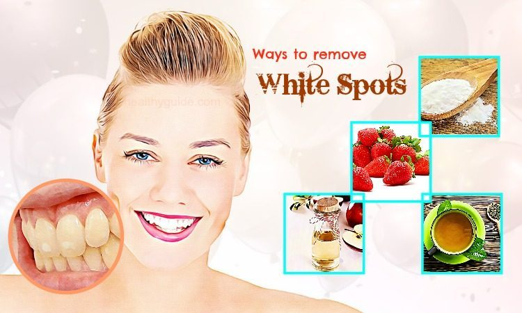 34 Best Ways to Remove White Spots from Teeth Fast & Naturally