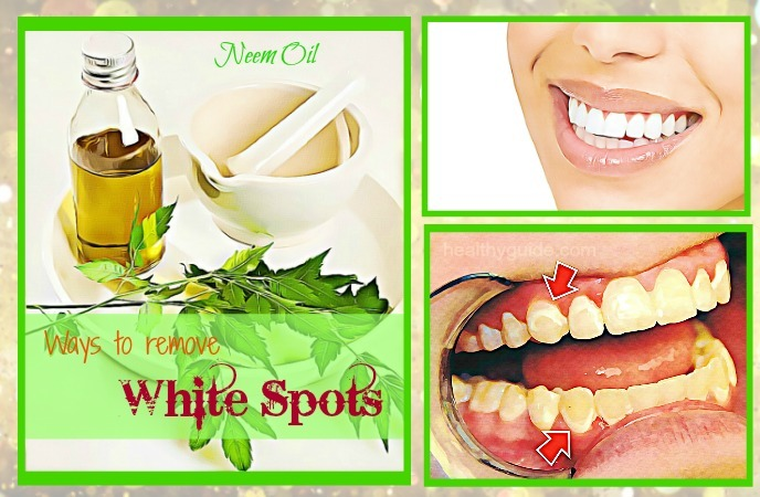 ways to remove white spots