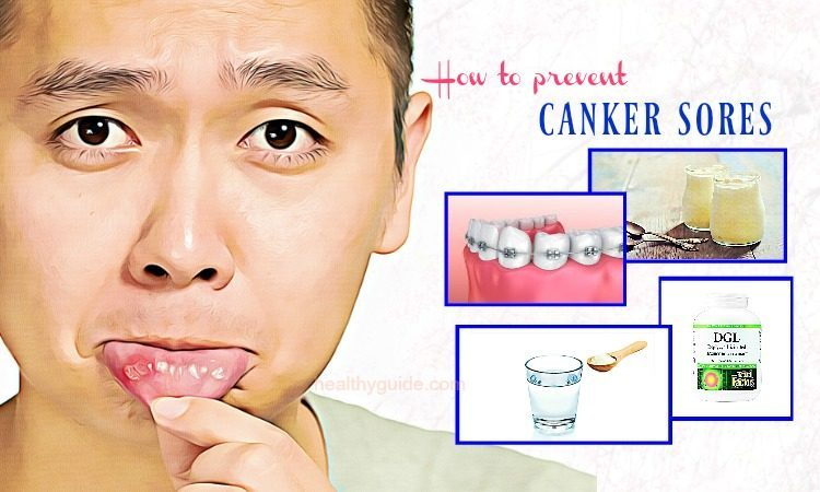 32 Tips How to Prevent Canker Sores on Tongue, Lips & in Mouth